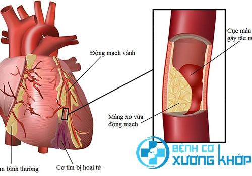 Bệnh mạch vành là bệnh tim mạch nguy hiểm nhưng mơ hồ về triệu chứng
