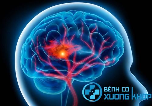 Tai biến mạch máu não gây nhiều biến chứng nguy hiểm cho người bệnh