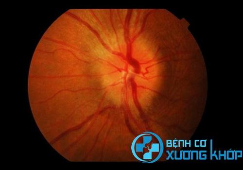 Biến chứng về mắt sau khi bị cao huyêt áp: