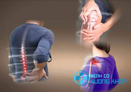 Điểm mặt 4 căn bệnh xương khớp hay gặp trong cuộc sống hiện đại