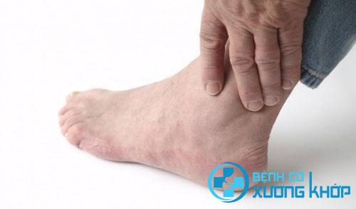 Bệnh Gout là căn bệnh chuyển hóa nguy hiểm