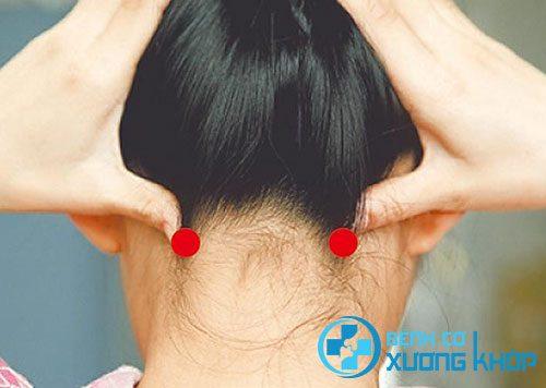 Vị trị huyệt Phong trì trong điều trị đau đầu