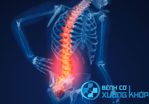 Thoát vị đĩa đệm cột sống thắt lưng gây đau đớn vùng lưng