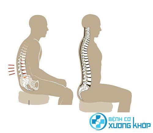 Ngồi đúng tư thế để phòng ngừa đau lưng, thoát vị đĩa đệm