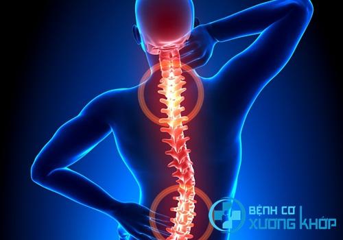 Bạn biết gì về phương pháp chữa thoát vị đĩa đệm bằng bài tập Vật lý trị liệu
