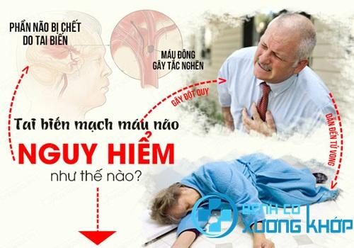 Đột quỵ não khiến bệnh nhân bị tổn thương não nghiêm trọng