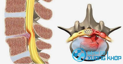 Thoát vị đĩa đệm cột sống gây chèn ép vào dân thần kinh