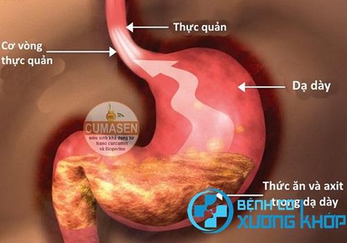 Bệnh trào ngược dạ dày thực quản sẽ nguy hiểm nếu không được điều trị