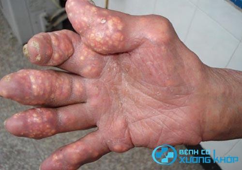 Bệnh Gout: Không chỉ là bệnh dành cho con nhà giàu