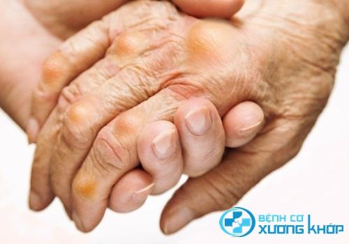 Vai trò của Xét nghiệm Acid Uric đối với bệnh nhân mắc bệnh Gout