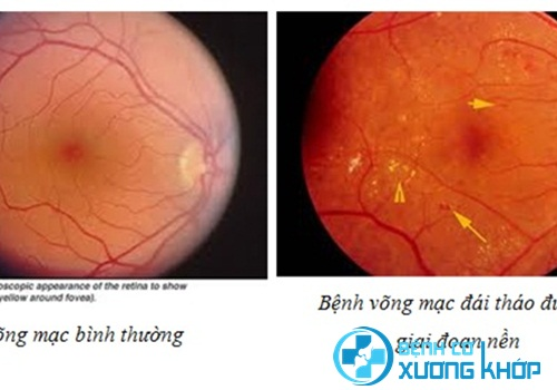 Người bị bệnh đái tháo đường dễ có nguy cơ mù lòa nếu không khám mắt