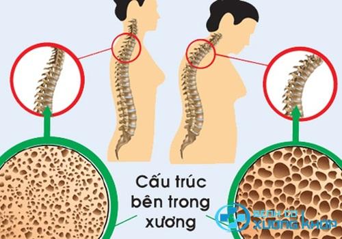 Chuyên gia chỉ ra đối tượng cần phòng ngừa bệnh loãng xương?