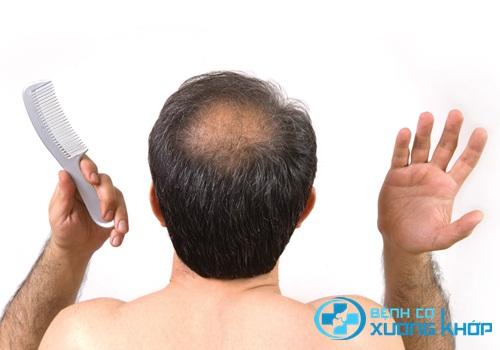 Chuyên gia lý giải về nguy cơ mắc bệnh tim nếu bạn bị hói đầu?