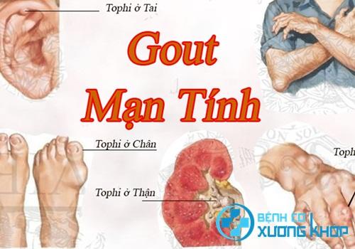 Bệnh nhân mắc bệnh Gout dễ bị biến chứng nếu tự ý dùng thuốc