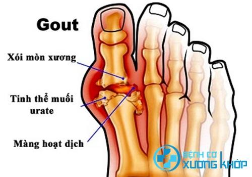 Bệnh Gout nguy hiểm như thế nào đối với người trẻ tuổi?