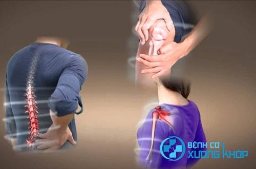 Muốn giảm đau cơ xương khớp khi chơi thể thao cần lưu ý điều gì?