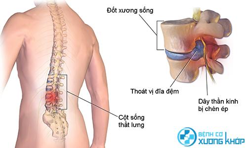 Phương pháp điều trị nội khoa thoát vị đĩa đệm như thế nào?
