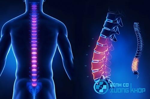Nguy cơ bệnh cơ xương khớp rất da dạng và nguy hiểm