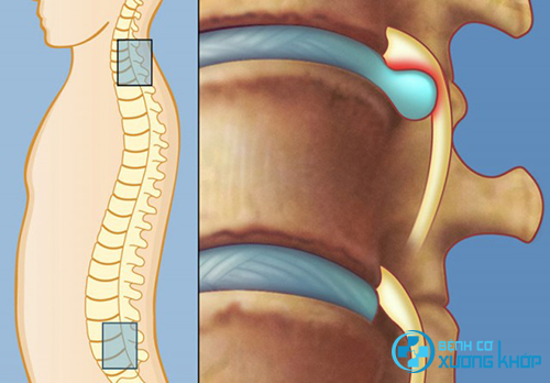 Nguyên nhân và giải pháp phòng ngừa bệnh cơ xương khớp