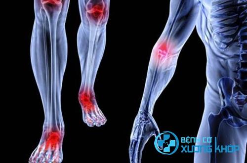 Vì sao bác sĩ khẳng định bệnh cơ xương khớp khiến bạn có thể bị tàn phế?