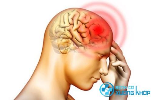 5 dấu hiệu nhận biết bệnh thiếu máu não chính xác Hiểu biến chứng bệnh thiếu máu hồng cầu hình liềm để phòng tránh tốt hơn Phân biệt các dạng khác nhau của bệnh thiếu máu