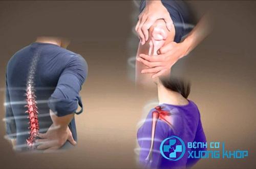 Người bị bệnh cơ xương khớp cần làm gì để đề phòng bệnh tái phát?