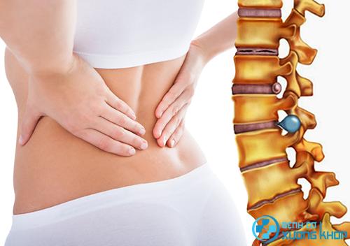 Vật lý trị liệu điều trị thoát vị đĩa đệm cột sống cổ