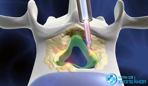 Điều trị bệnh thoát vị đĩa đệm nhờ phương pháp vật lý trị liệu.