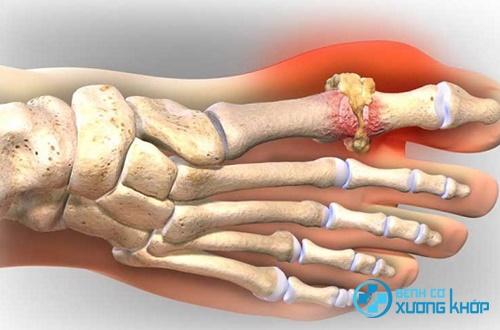 Bệnh Gout là gì, nguyên nhân và cách điều trị hiệu quả bệnh Gout