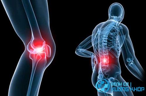 Bệnh nhân bị bệnh cơ xương khớp nên làm gì vào đầu năm?