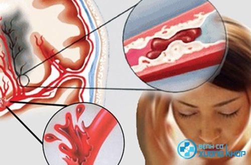 Điểm mặt 5 nguyên nhân hàng đầu gây tai biến mạch máu não