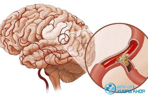 Dị dạng mạch máu não gây tai biến mạch máu não, xuất huyết não