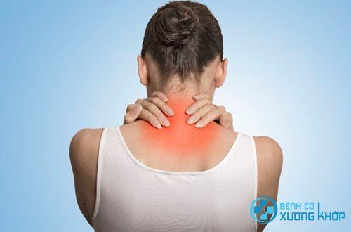 Tìm hiểu hội chứng căng đau vai gáy