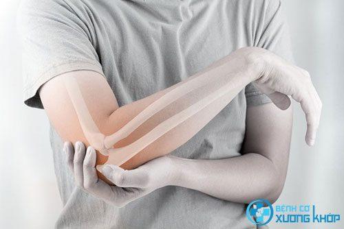 Bộ phận khuỷu tay dễ mắc các bệnh cơ xương khớp.