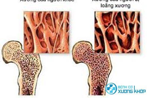 Chế độ dùng thuốc như thế nào tốt cho người bệnh loãng xương