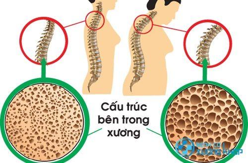 Thiếu canxi gây loãng xương dẫn tới tình trạng đau thắt lưng