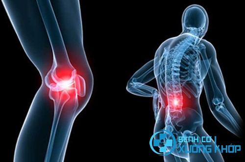 Bệnh nhân bị gãy xương phải cưa chân vì chữa bệnh cơ xương khớp sai cách