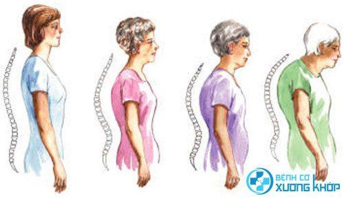 Nguy cơ bị gù vẹo cột sống do bệnh loãng xương