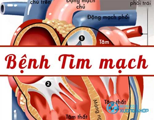 Những chỉ số liên quan đến bệnh tim mạch cần lưu ý
