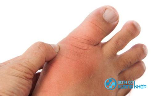 Gút khởi phát gây ra những đau đớn ở các đốt ngón chân, cổ chân