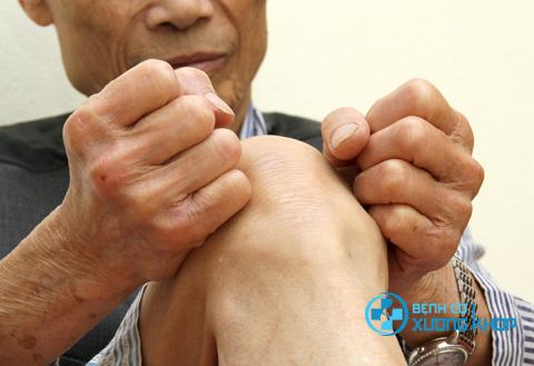 Mùa đông là thời điểm các bệnh đau xương khớp dễ tái phát