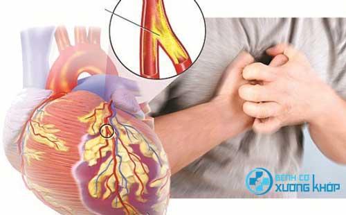Suy tim căn bệnh gây nên tỉ lệ tử vong cao ở người già