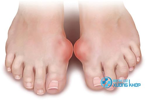 Nguyên nhân gây ra bệnh Gout là gì?