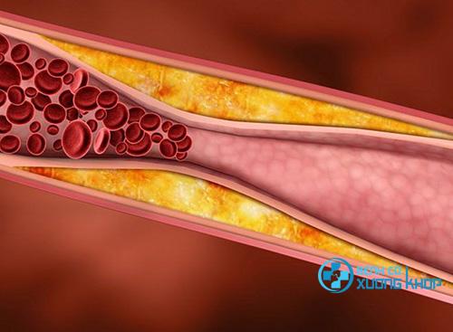 Lắng nghe Dược sĩ Pasteur chia sẻ cách giảm mỡ máu thần kỳ trong một tuần