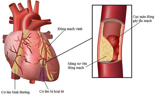 Các loại bệnh tim