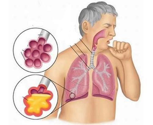 Điều trị nhiễm trùng đường hô hấp cấp tính
