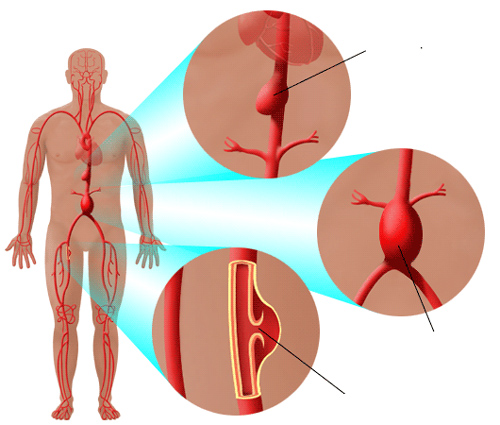 Điều trị phình động mạch chủ bụng