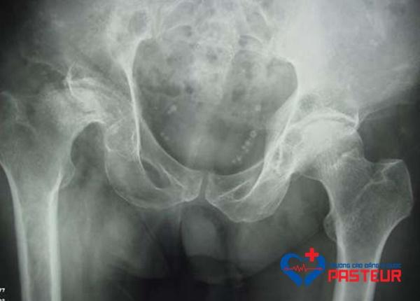 Triệu chứng lâm sàng bệnh hoại tử vô khuẩn chỏm xương đùi
