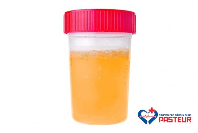 Tình trạng nước tiểu tiết lộ gì về sức khỏe của bạn?