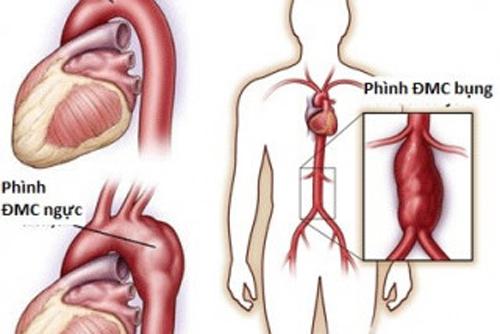Phình động mạch chủ bụng là gì?